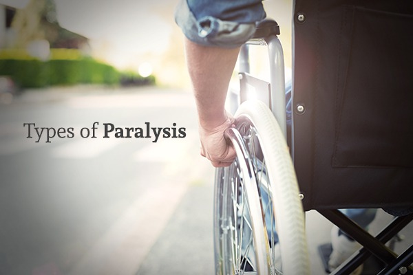 A man in a wheelchair beside the words types of paralysis